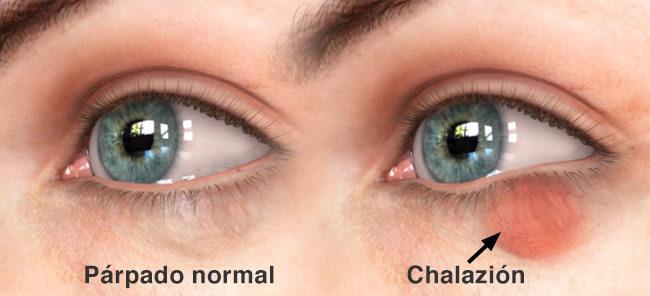 Como arreglar los pliegues y los círculos oscuros alrededor de los ojos