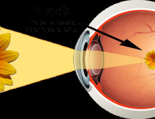 Complicaciones por miopía elevada