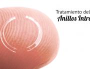 Tratamiento del Queratocono con anillos intracorneales
