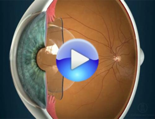 Ventajas de las lentes intraoculares fáquicas