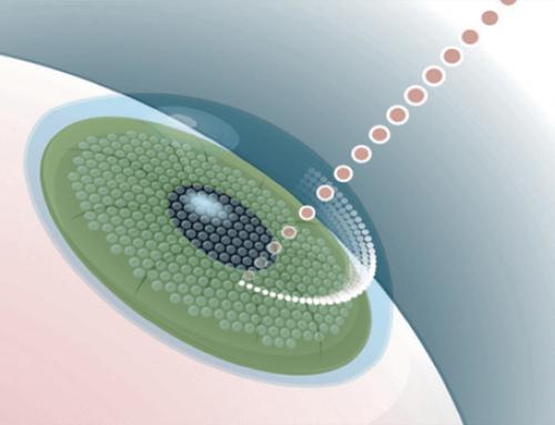 Opération des yeux au laser pour myopie