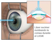 Operación con LASIK teniendo blefaritis