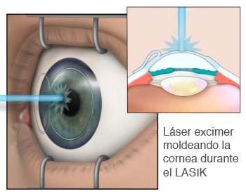 d0b8112331 Significado de LASIK
