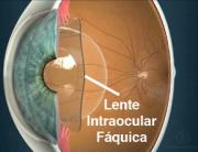 Visian ICL, lentes intraoculares fáquicas