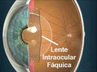 lente intraocular faquica