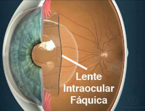Operación para alta miopía