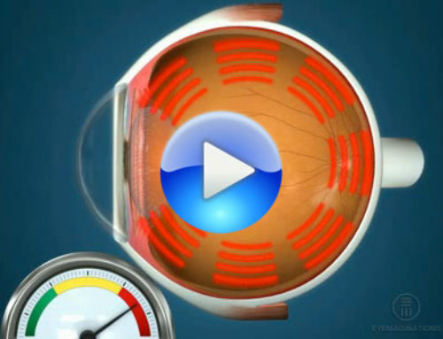 Ocular hypertension and glaucoma