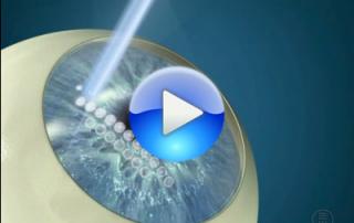 Cirugía Refractiva para córneas finas