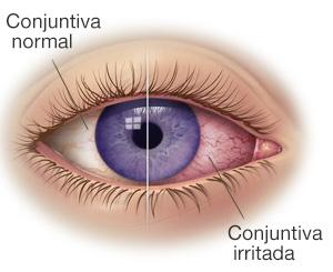 Arreglar las arrugas profundas bajo los ojos el foro