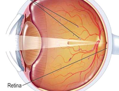 Moscas volantes o puntos negros flotando en el ojo