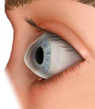 ce385c9c14eca Queratocono y lentes de contacto