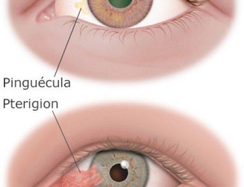 Un bultito en el ojo llamado pinguécula