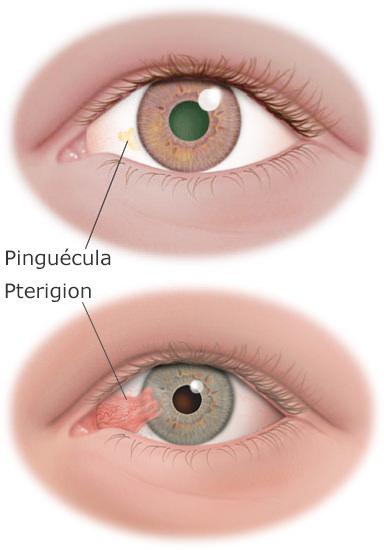 pterigion y pinguecula