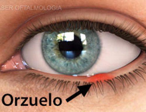 Cómo curar un orzuelo en el ojo