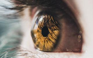 ojo con queratocono