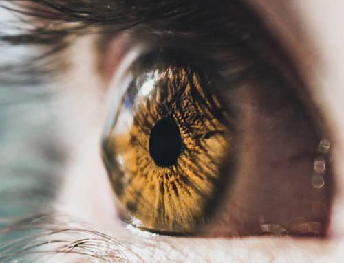 Queratocono y lentes de contacto