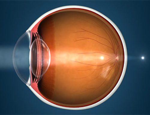Cirugía refractiva para astigmatismo