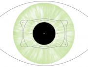 Precio de las lentes intraoculares ICL