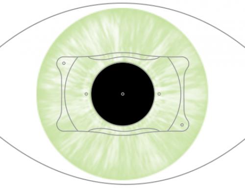Cirugía de hipermetropía con lente intraocular