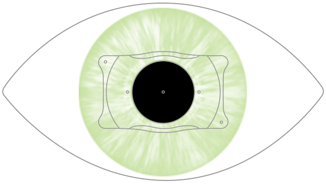 81ff934f9c Precio de las lentes intraoculares ICL
