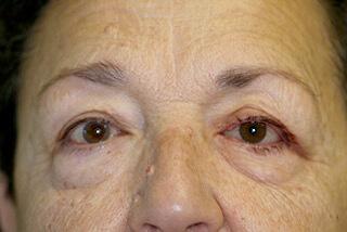 Paciente con Protesis Ocular