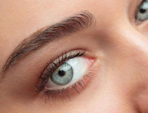 Efecto del láser de luz pulsada en pacientes con síndrome de ojo seco