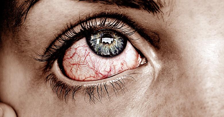 venas en el ojo