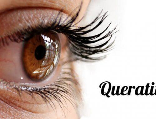 Queratitis: causas y tratamiento