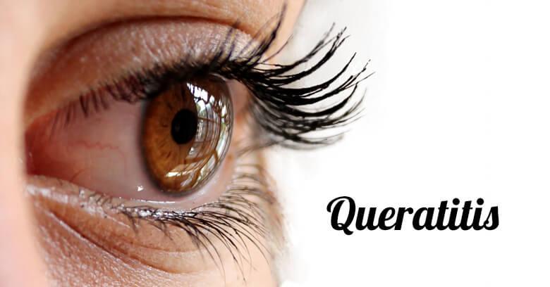 Queratitis