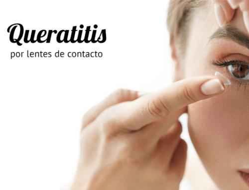 Queratitis por lentes de contacto
