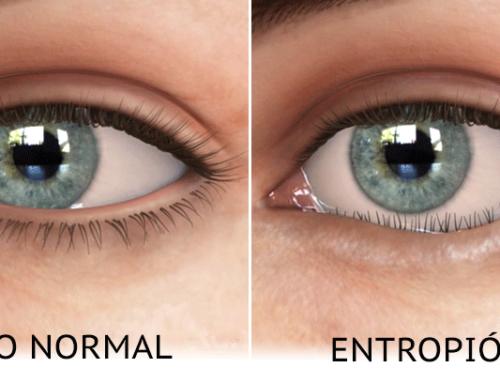 Entropión: síntomas y tratamiento