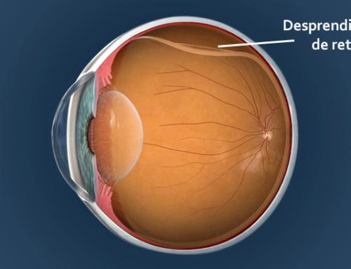 Láser de Argón: ventajas del tratamiento y postoperatorio