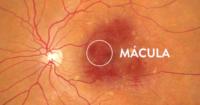 mácula del ojo