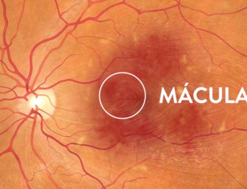 Alimentos para evitar degeneración macular