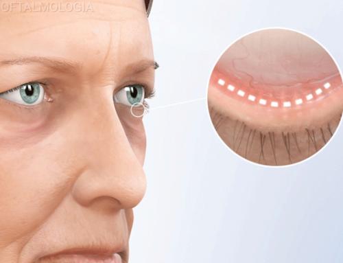 Cirugía Plástica Ocular por estética y salud ocular
