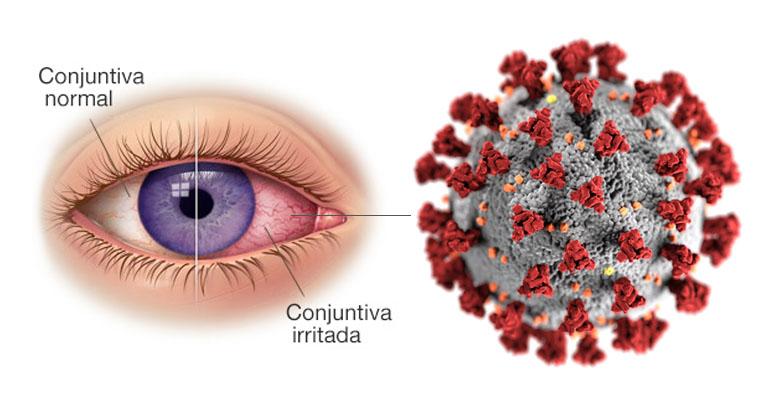 Conjuntivitis como síntoma de COVID-19